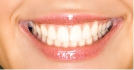 Bright Dental Care in Costa Mesa CA